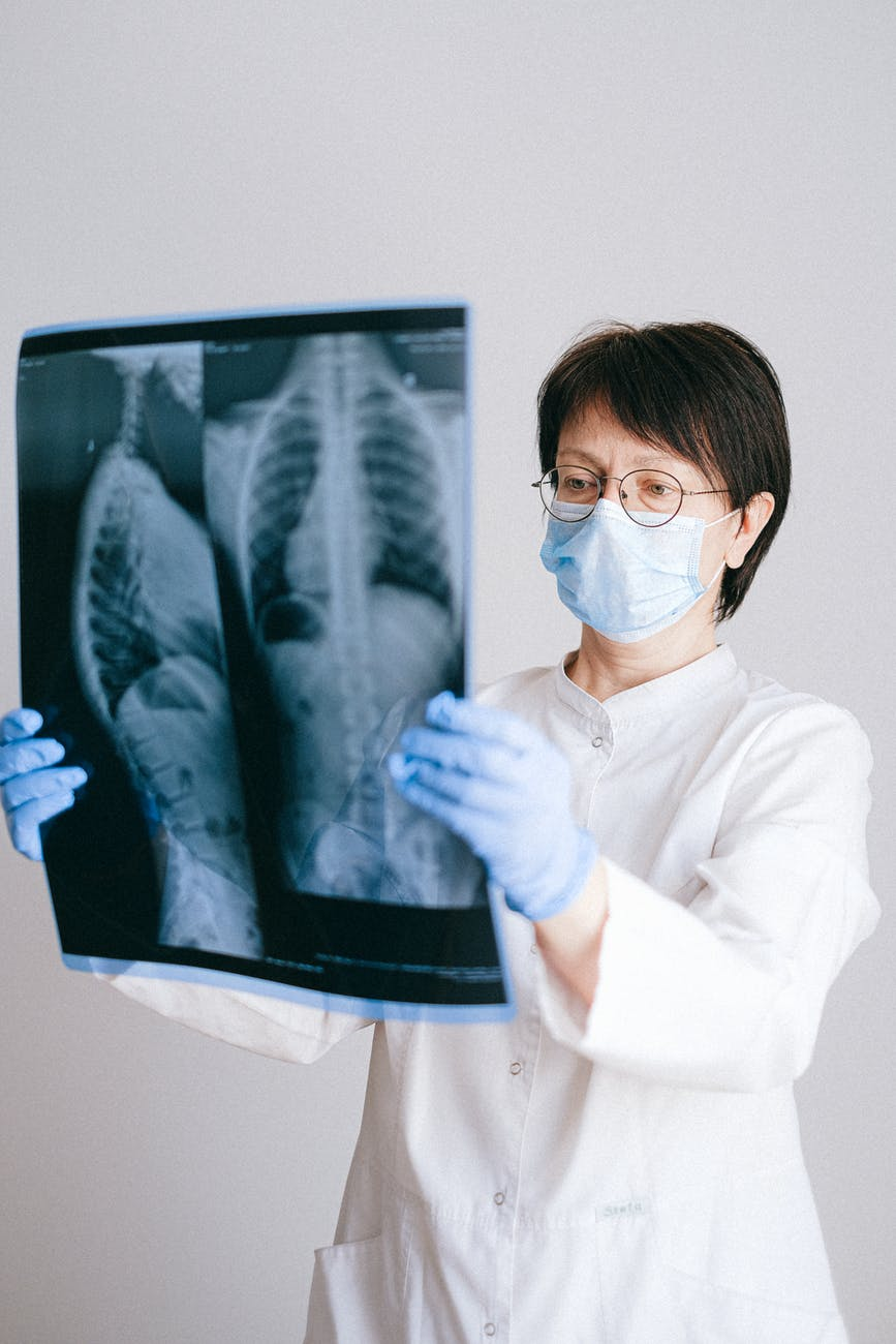 doctor holding a x ray