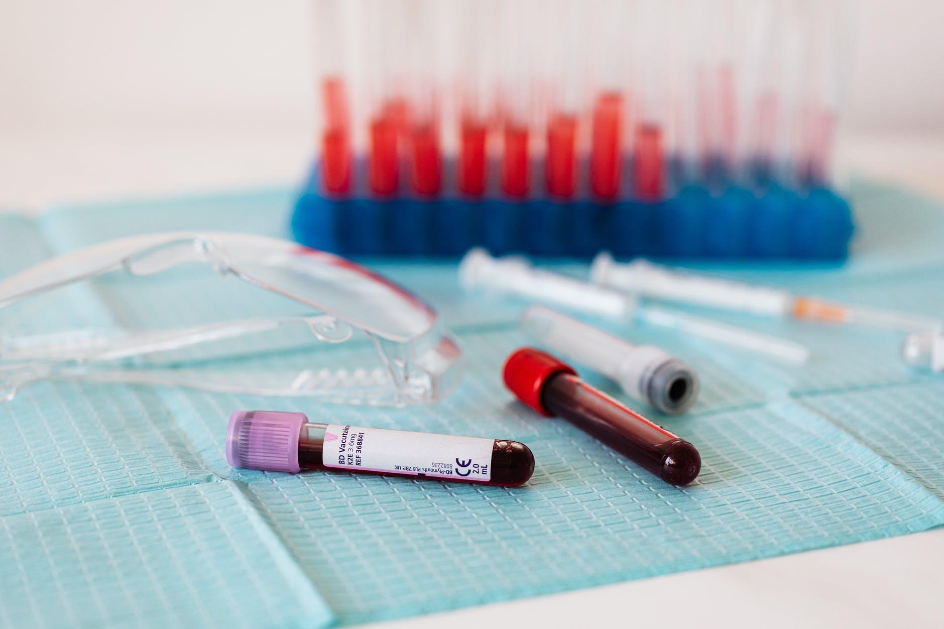full vials of blood near various medical equipment for taking blood
